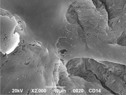 Immagine al microscopio elettronico di cellule staminali seminate su supporti a base di idrossiapatite. Le cellule staminali hanno acquisito un fenotipo osteoblastico