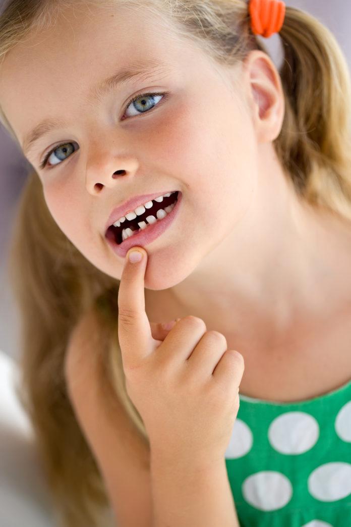 traumi dei decidui Lo splintaggio nel paziente che ha subito trauma dentario traumatologia dentale denti decidui