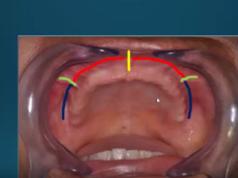 dm_il-dentista-moderno_alterazioni-biomeccaniche-susseguenti-alledentulismo