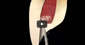 dm_il-dentista-moderno_anatomia-canalare-incisivo-centrale-laterale-e-canino-mascellaridm_il-dentista-moderno_anatomia-canalare-incisivo-centrale-laterale-e-canino-mascellari