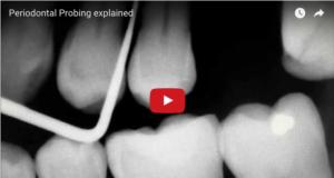 dm_il-dentista-moderno_parametri-parodontali-ppd-cal-dmg