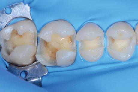 2. Cavità dopo la rimozione dei restauri e la preparazione cavitaria