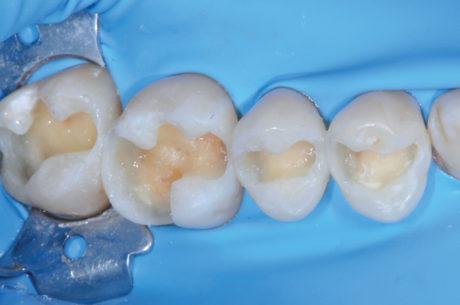 3. Ricostruzione delle pareti cavitarie con composito microibrido in pasta e trasformazione in cavità di I classe di Black