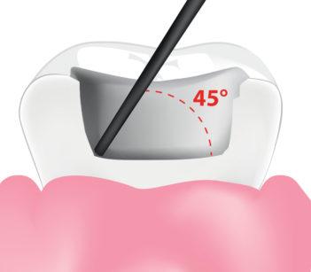 4. Posizionamento iniziale a 45° del puntale per la tecnica di modellazione fluida