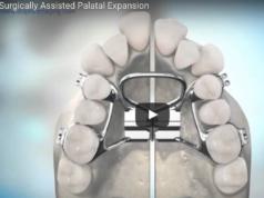 dm_il-dentista-moderno_-tecnica-chirurgica-per-espansione-del-palato-nel-subadulto