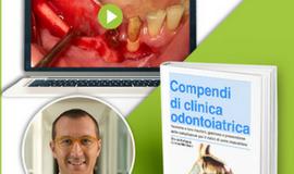 passivazione_lembo_video_ebook