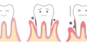DM_il dentista moderno_epidemiologia malattia parodontale_parodontite
