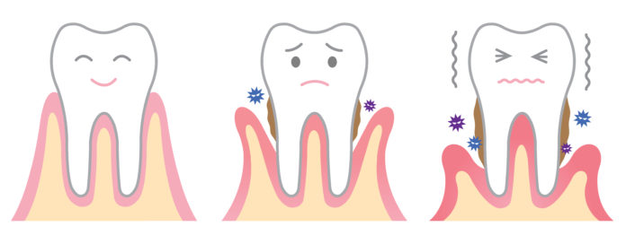 DM_il dentista moderno_epidemiologia malattia parodontale_parodontite_ paziente parodoontale