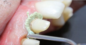 DM_il dentista moderno_retrazione gengivale in protesi fissa 2