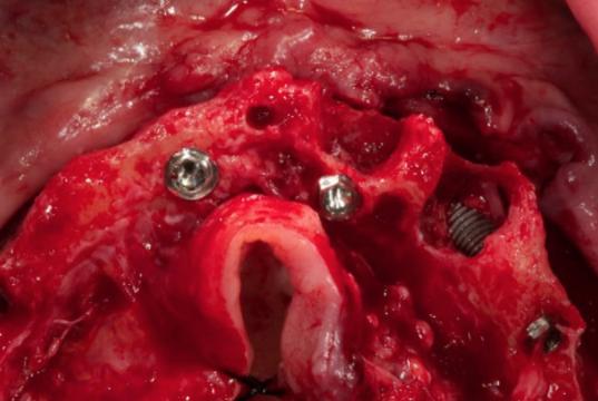 Agliardi_Riabilitazione di casi complessi grazie all'ausilio di impianti inclinati, intraorali e zigomatici