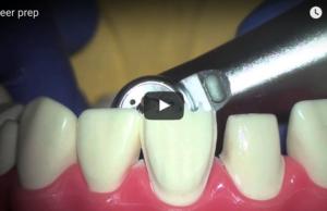 DM_il dentista moderno_faccette in ceramica