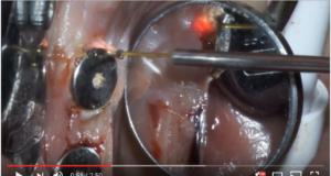 DM_il dentista moderno_laser_parodontologia_implantologia