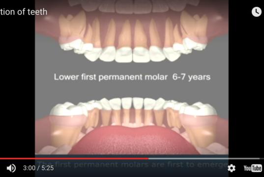 DM_il dentista moderno_agenesie dentarie_schema di eruzione_eruzione denti permanenti eruzione denti decidui