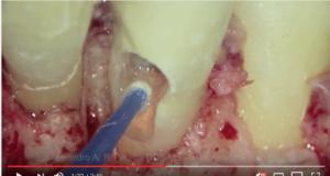 DM_il dentista moderno_perforazioni endodontiche classificazione