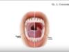 DM_il dentista moderno_ Alitosi condizioni predisponenti e tipologieDM_il dentista moderno_ Alitosi condizioni predisponenti e tipologie