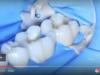DM_il dentista moderno_resine composite_compositi in odontoiatria