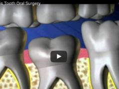 DM_il dentista moderno_Infraocclusione dei molari decidui