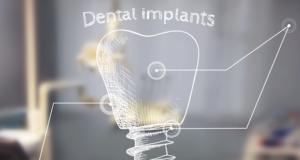 DM_il dentista moderno_Mantenimento dei tessuti molli perimplantari