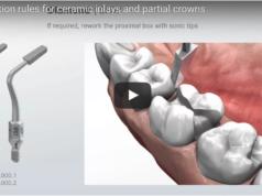 DM_il dentista moderno_intarsi inlay in ceramica_preparazione