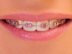 DM_il dentista moderno_parodonto_ortodonzia_legamento parodontale