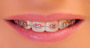 moderno_parodonto_bracket_ortodonzia_legamento