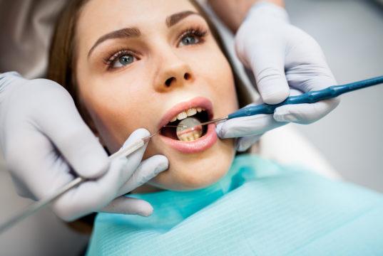 DM_il dentista moderno_Rifinitura su manufatti ceramici glasatura e lucidatura