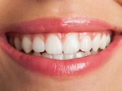 DM_il dentista moderno_ortodonzia_apparecchio_sorriso perfetto_placca di Hawley