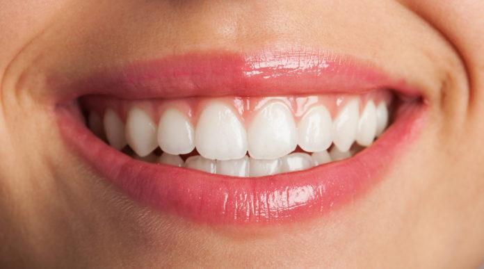 DM_il dentista moderno_ortodonzia_apparecchio_sorriso perfetto_placca di Hawley_incisivi centrali_torque
