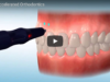 Dm_il dentista moderno_Metodiche di accelerazione del trattamento ortodontico