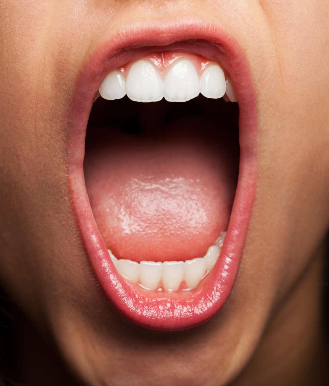 Ematoma del pavimento della bocca