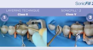 DM_Il dentista moderno_tecnica bulk fill