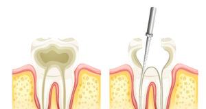 DM_il dentista moderno_ pervietà degli orifizi durante il build-up pre-endodontico