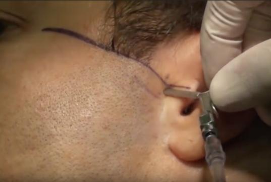DM_il dentista moderno_artrocentesi_ATM
