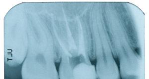 DM_il dentista moderno_errori in endodonzia_devitalizzazione