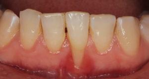 DM_il dentista moderno_recessioni gengivali