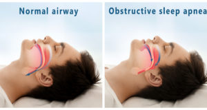 DM_il dentista moderno_apnee ostruttive