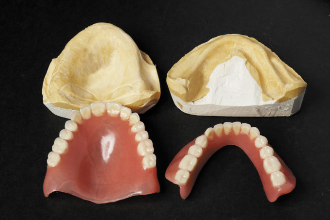 DM_il dentista moderno_dimensione verticale cefalometria
