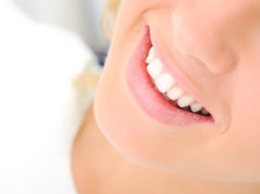 DM_il-dentista-moderno_Linee-guida-prevenzione-dei-traumi-dentali-in-età-evolutiva-cause-principali-e-ruolo-dell'odontoiatra.jpg