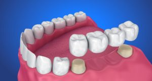 DM_il dentista moderno_Fatigue test applicato ai materiali ceramici