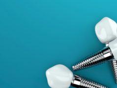 DM_il dentista moderno_Fattori di rischio nel fallimento a breve termine in implantologia