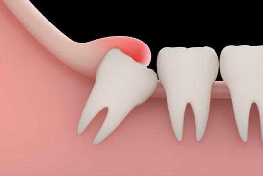 DM_il dentista moderno_Ipoestesia mandibolare refrattaria in chirurgia orale