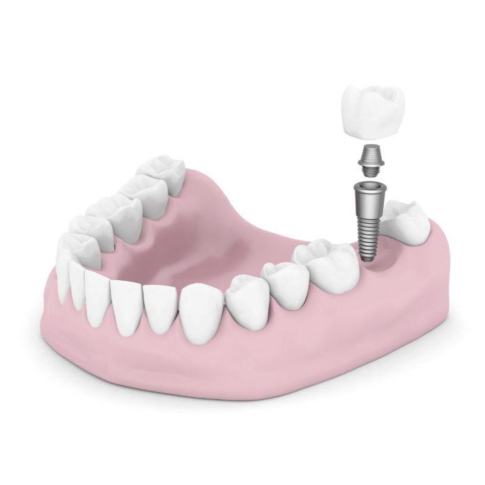 DM_il dentista moderno_Rischio implantare nel paziente con patologie sistemiche