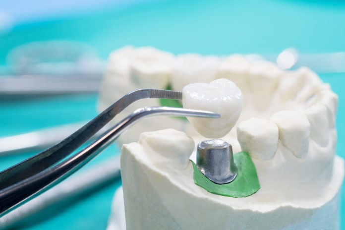 Metodiche di decontaminazione delle superfici implantari