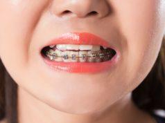 DM_il dentista moderno_vite ortodontica_mini vite_ramo mandibolare