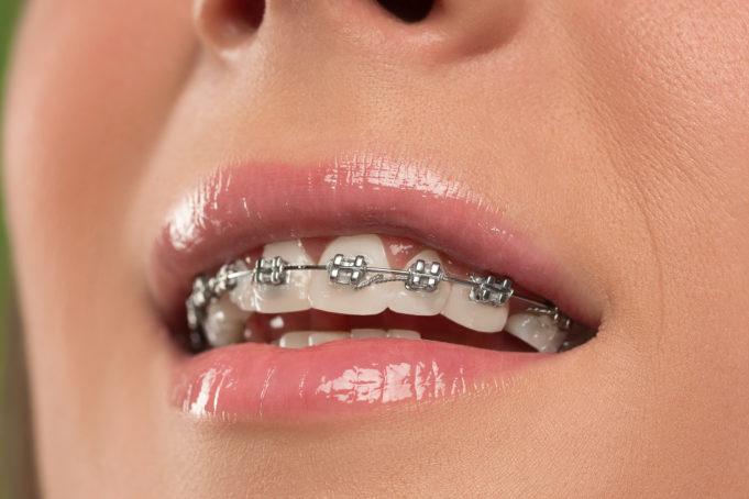 DM_il-dentista-moderno_comunicazione-cellulare-nella-terapia-ortodontica.jpg