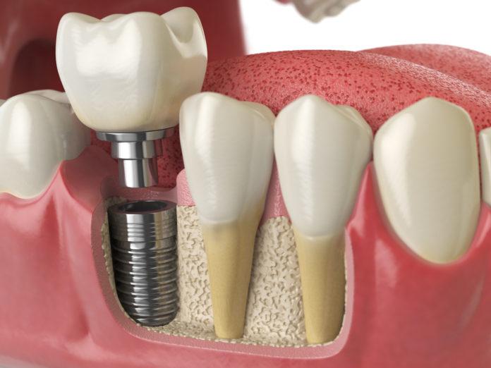 Dm_il-dentista-moderno_impianti-ultra-corti.jpg