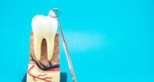 DM_il-dentista-moderno_La-rimozione-dei-perni-endocanalari