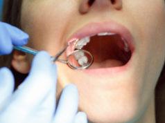 DM_il-dentista-moderno_mini-impianti-ortodonzia.jpg