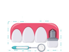DM_il-dentista-moderno_perimplantite_amelogenine
