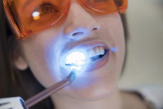 DM_il dentista moderno_adesivi_materiali dentari